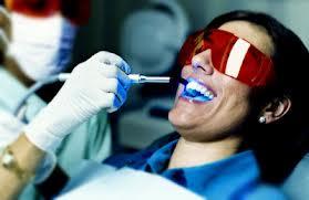 הלבנת שיניים בלייזר
