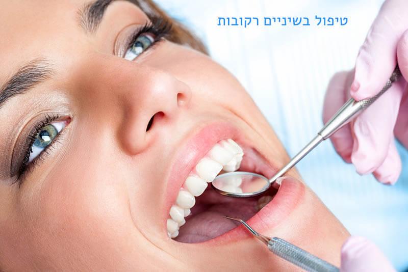 ריקבון של השן