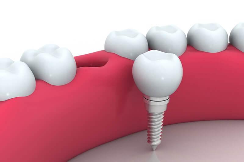 השתלות שיניים ביהוד - איתור קליניקה מומלצת באמצעות אתר דנטלגייד