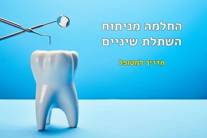 השתלת שיניים החלמה כמה זמן