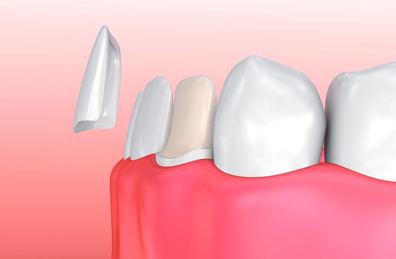 ציפוי שיניים מידע ומחירים