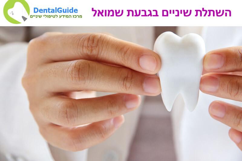 השתלת שיניים בגבעת שמואל