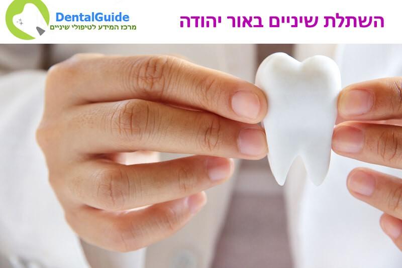 השתלת שיניים באור יהודה